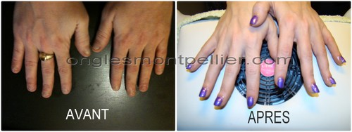 pose resine vernis violet reduite